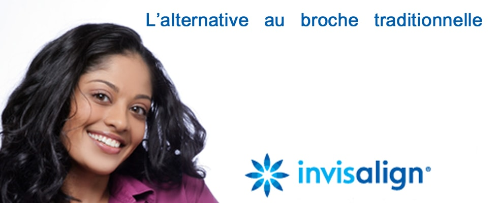 Orthodontic and invisalign