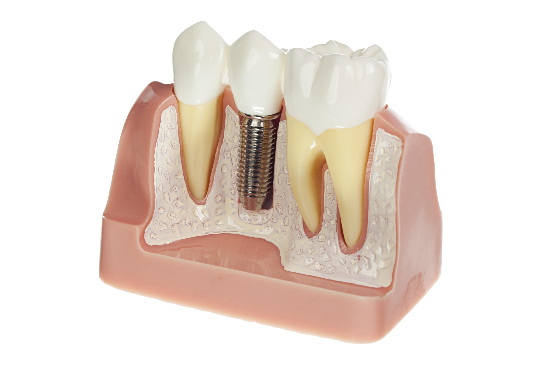 methode implant dentaire 1